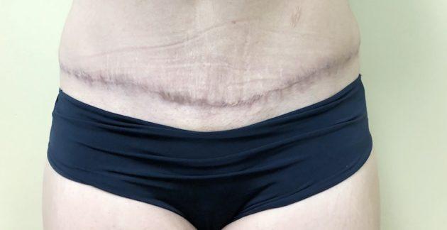 Tummy Tuck Scar